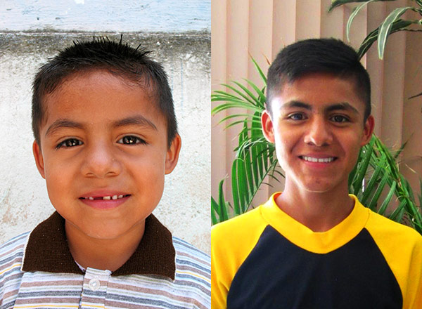 Side-by-side comparison of Erwin's first CI photo with his most recent